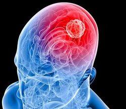 pengobatan-kanker-otak